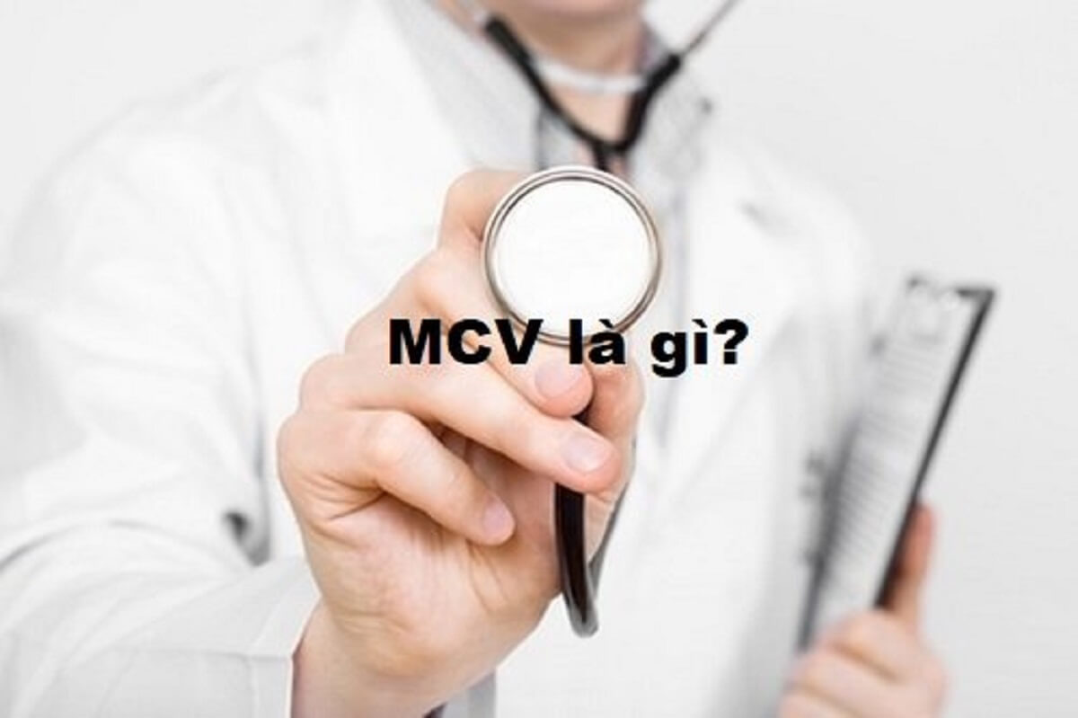 MCV là gì? Những lưu ý không thể bỏ qua về chỉ số MCV