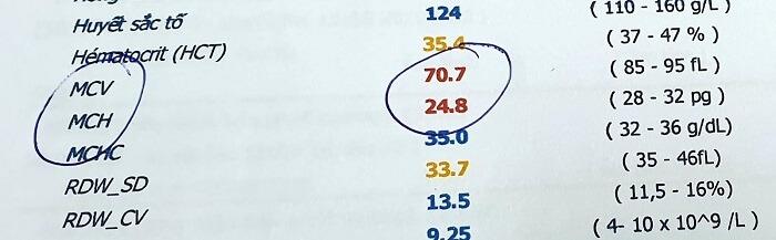 Xét nghiệm MCV ở mức thấp hơn 80 fl biểu hiện sự bất thường